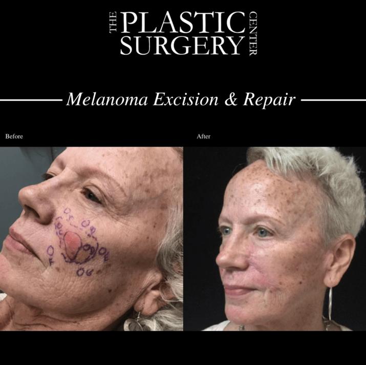 Melanoma excision & repair