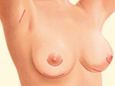 Breast Augmentation Closing the incisions
