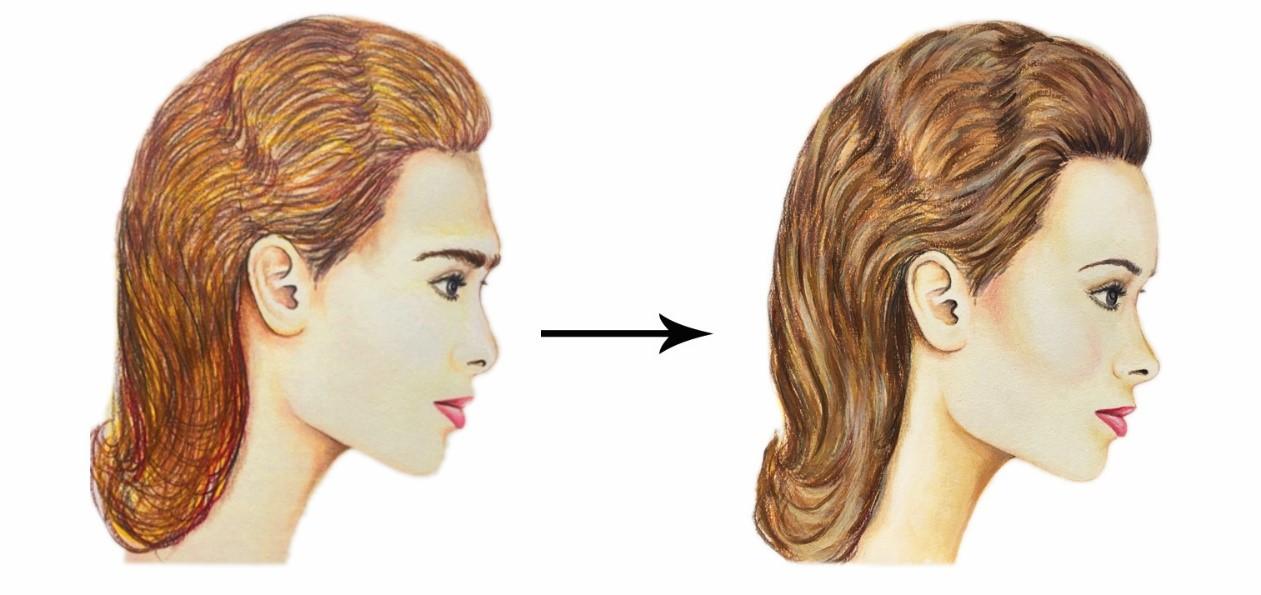 Facial Feminization