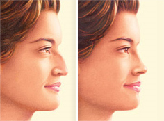NJ rhinoplasty before and after