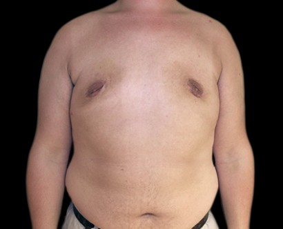the causes symptoms and treatment of gynecomastia Causes of gynecomastia  with 'pure glandular' gynecomastia, the only possible treatment is surgical excision of  typical physical symptoms of male breast.