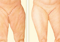Medial Thigh Lift