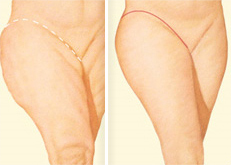 Outer Thigh Lift
