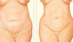 Tummy Tuck Incision Front