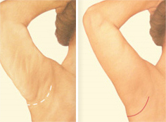 Surgery for Upper Arm Skin